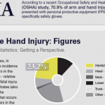 Workplace hand Injuries