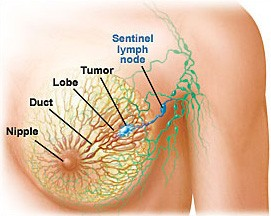 breast cancer diagram breasts