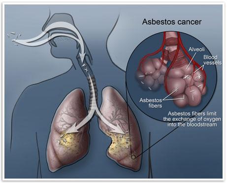 Asbestos Side Effects | Myth: Exposure is Felt Immediately