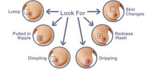 what to look for on your breasts- breast exam